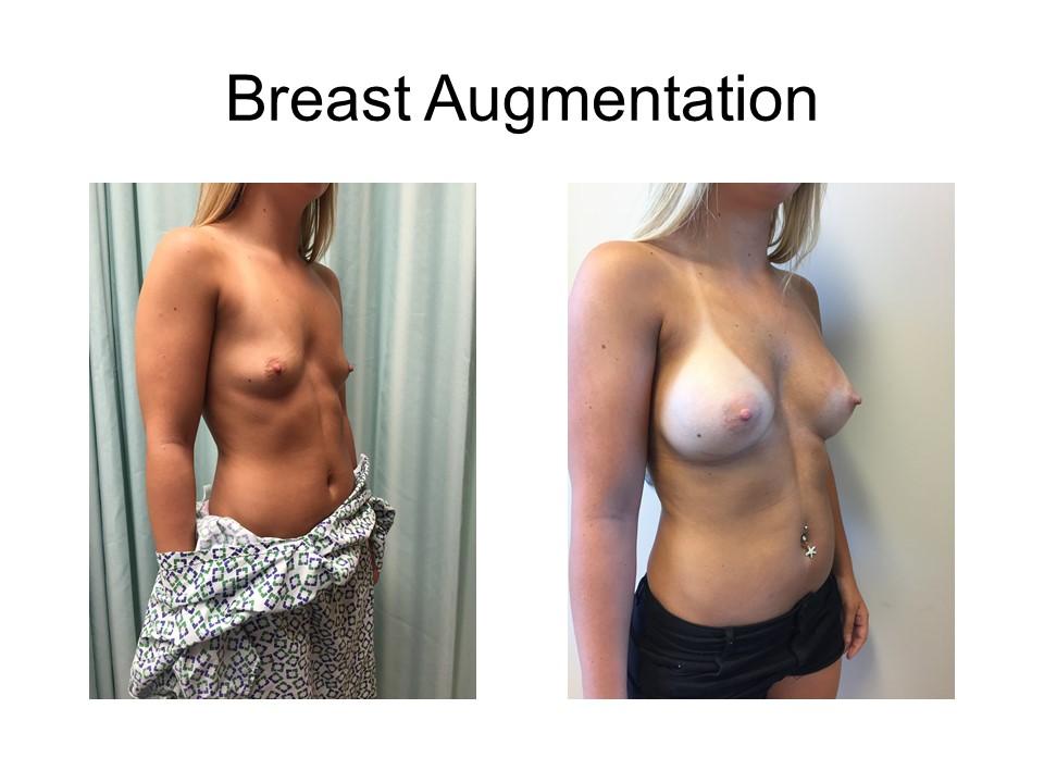 Breast Augmentation Khoury Plastic Surgery_AZ