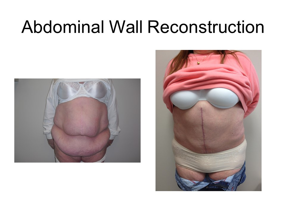 Abdominal Wall Reconstruction Khoury Plastic Surgery DN
