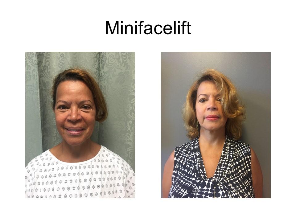 Mini Facelift Khoury Plastic Surgery_IG