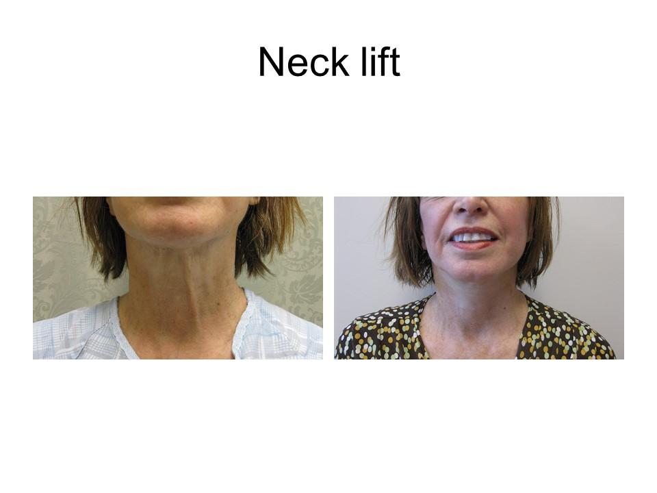 Necklift Khoury Plastic Surgery_TG